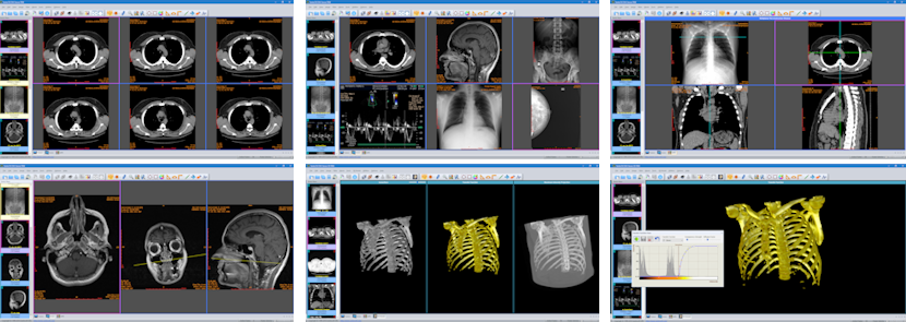 Sante DICOM Viewer Free