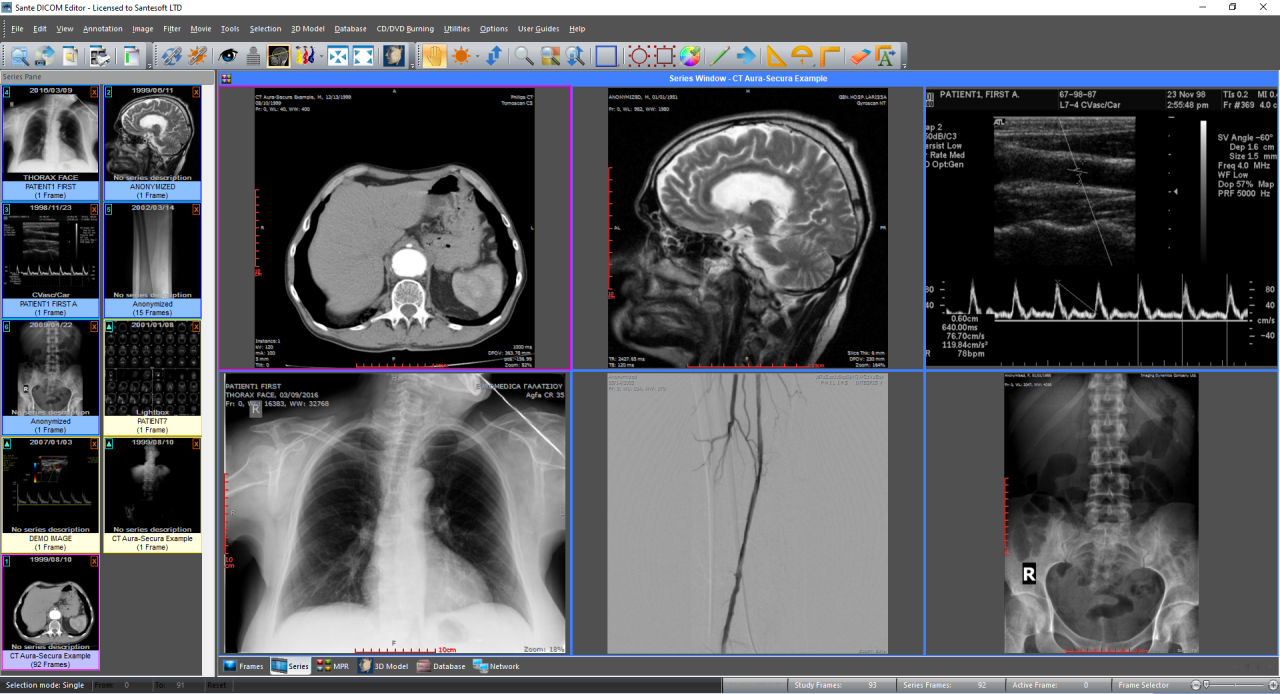 Santesoft - Advanced DICOM and PACS software