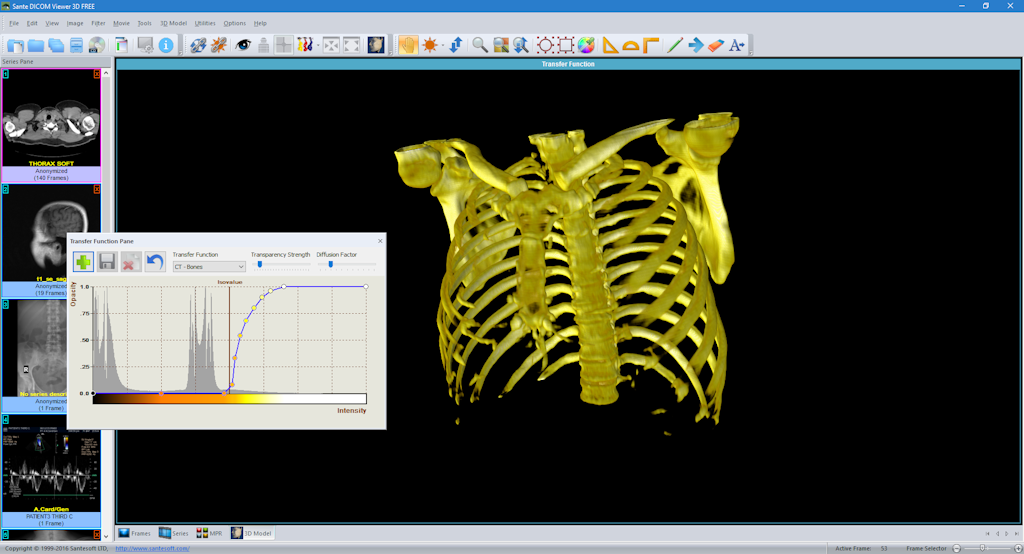 Sante dicom viewer 3d free 3d model editor