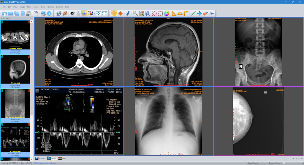 philips dicom viewer download